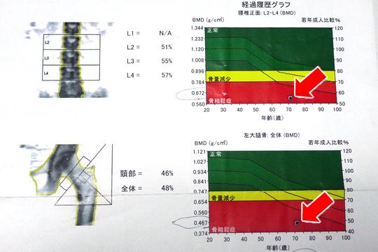 骨密度測定結果 経過グラフ