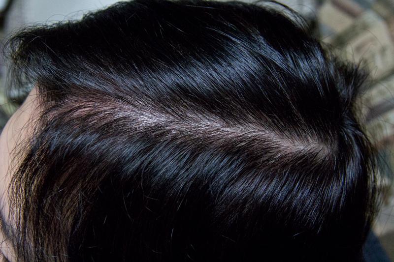 cipla finpecia服用後6か月の頭皮